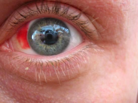 Imagem pós cirurgia reparadora de miopia em paciente
