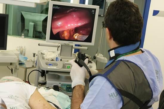 Realização do exame de endoscopia