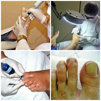 Os tratamentos vai desde uma simples unha encravada até casos mais sérios