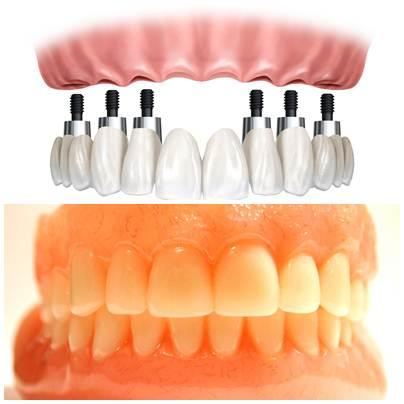 Dois tipos de prótese odontológica